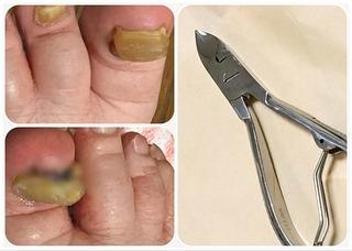 高齢者の盛り上がった足の爪